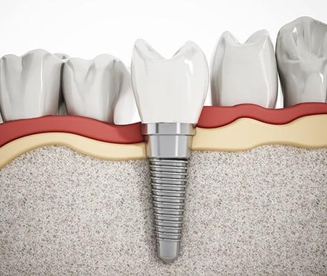 Dental Bridges Implant